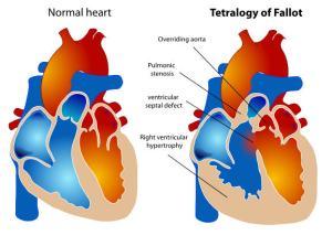 Tetralogy of FallotSource: Wikipedia