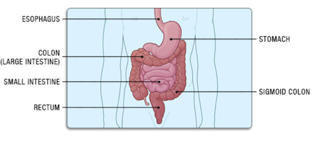 colectomy_body